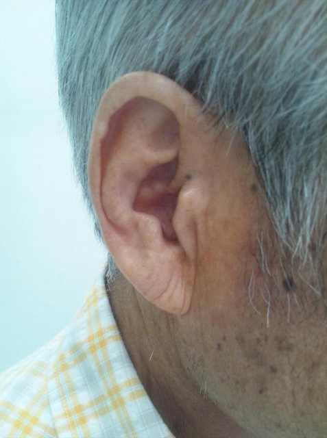 Did You Know Your Ears Hold Secrets About Your Heart?